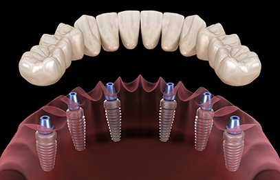 dental implants in brampton